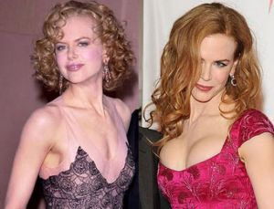 celebs_with_plastic_surgery_640_28